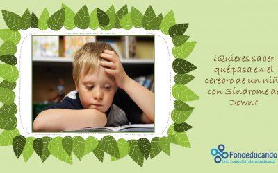 ¿Quieres saber qué pasa en el cerebro de un niño con Síndrome de Down?